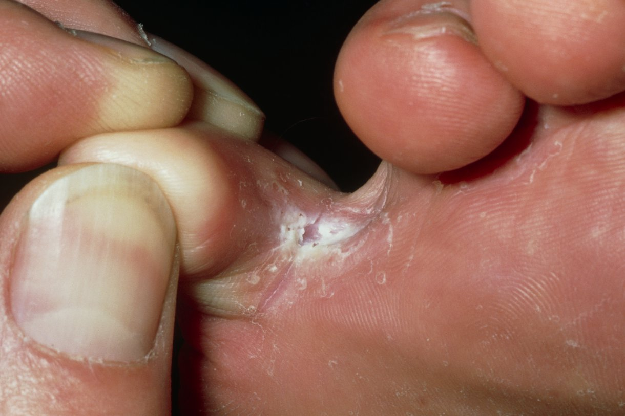 how to treat cracked skin between toes